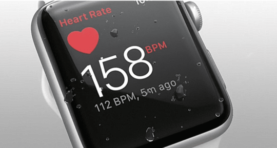 Apple Watch Heart Rate Monitors are the Best; Cleveland Clinic Research